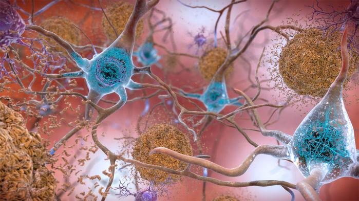 Uma nova droga de anticorpo removeu as placas de proteína (à direita) que se formam em torno dos neurônios na doença de Alzheimer. INSTITUTO NACIONAL DO ENVELHECIMENTO / INSTITUTOS NACIONAIS DE SAÚDE